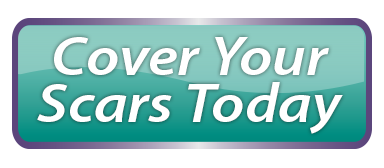 Cover Scars Today Button