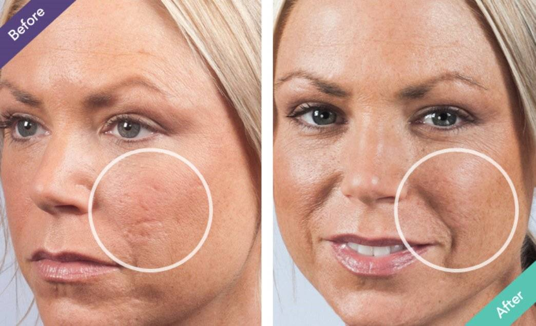 scar filler for rolling acne scars