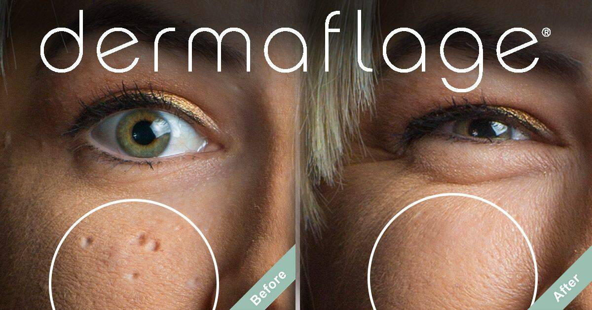 Dermaflage Fills the Scars that ScarAway Silicone Sheets Can't.
