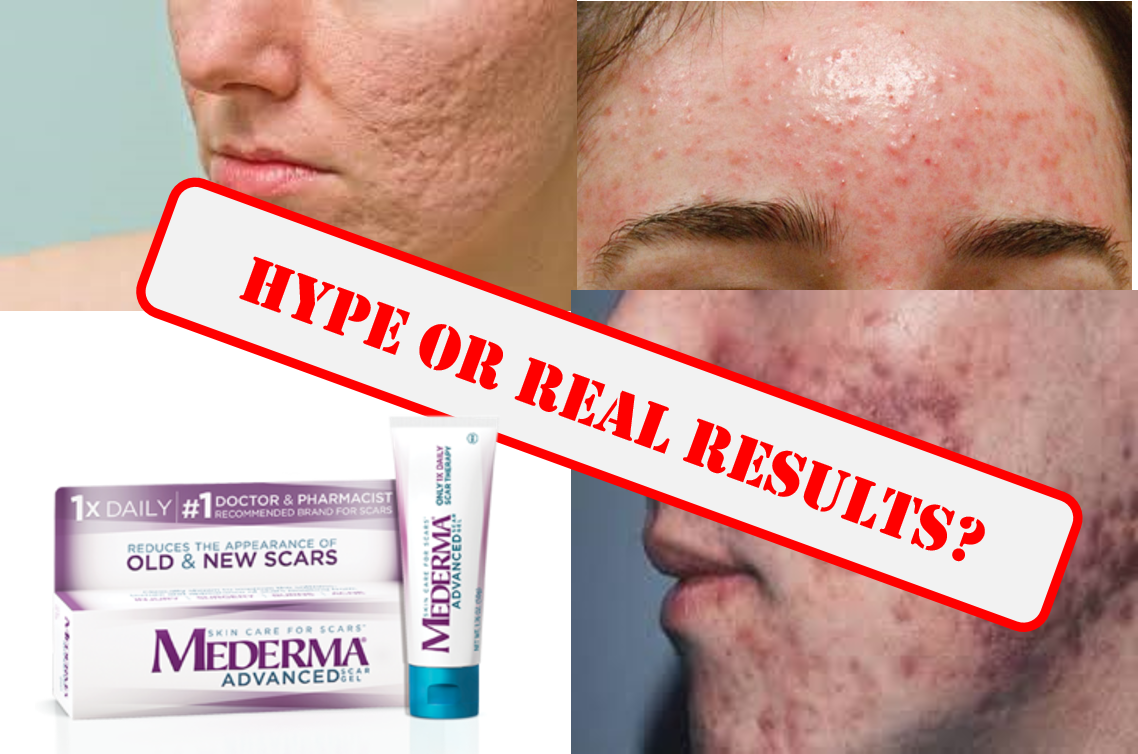 Piercing mederma scars for How to