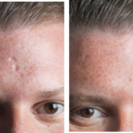 how to conceal scars - acne pock marks