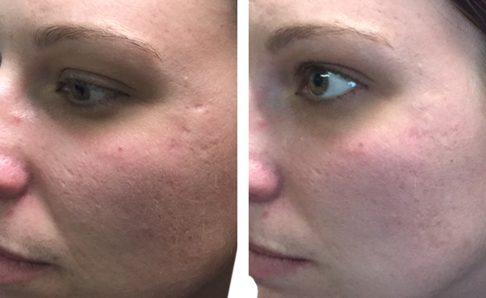 mederma before and after - Trinity